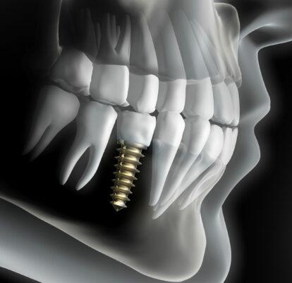 Implantologie – MKG Arabellapark in München-Bogenhausen